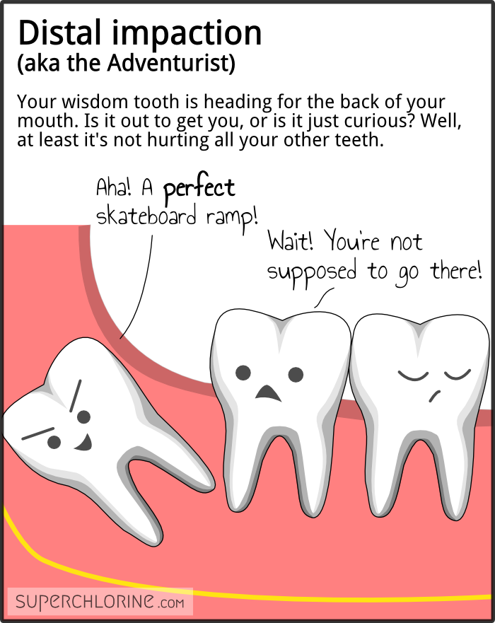 wisdom-teeth-types_distal
