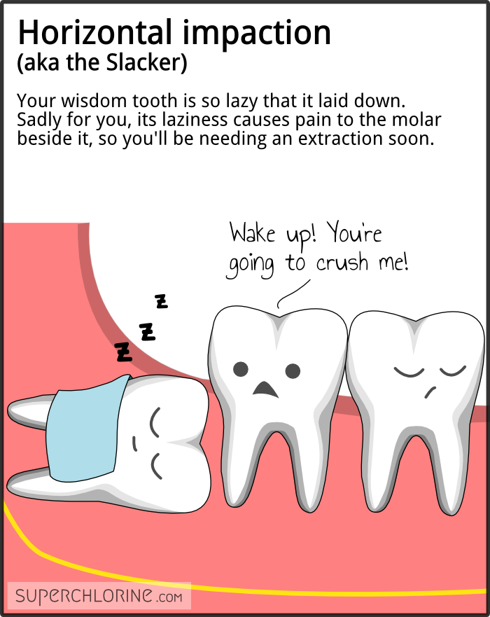 wisdom-teeth-types_horiz