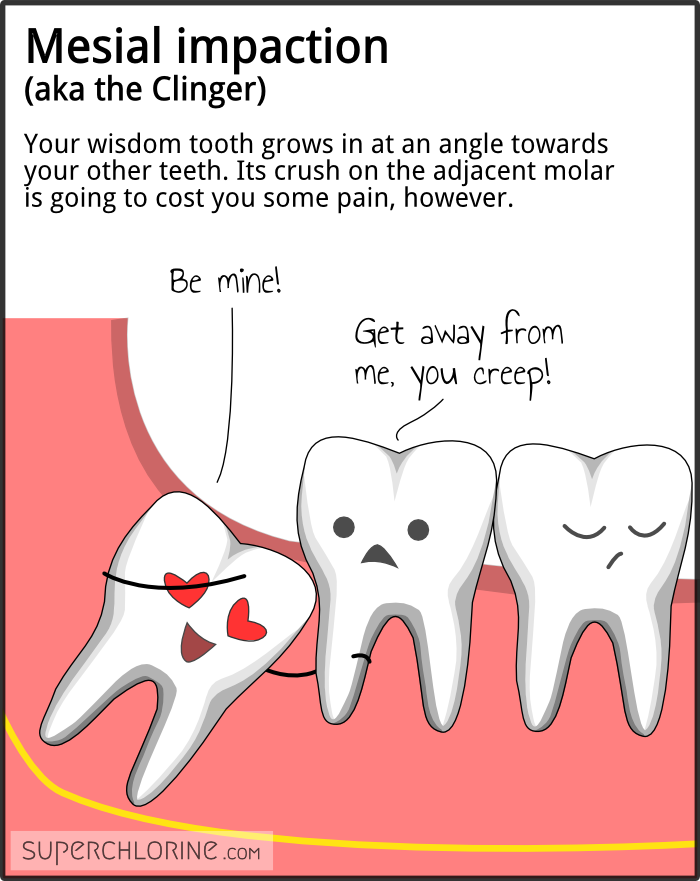 wisdom-teeth-types_mesial